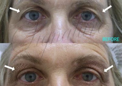 nonsurgical-eye-lift-02