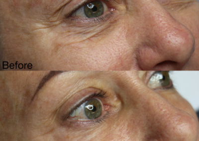 nonsurgical-eye-lift-07