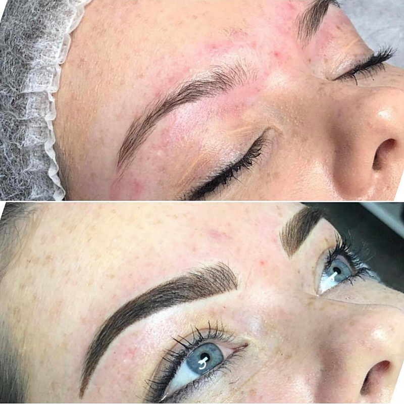 cosmetic brows treatment