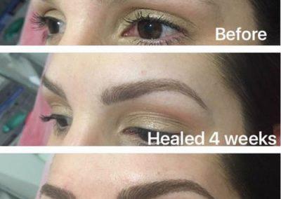 healed32