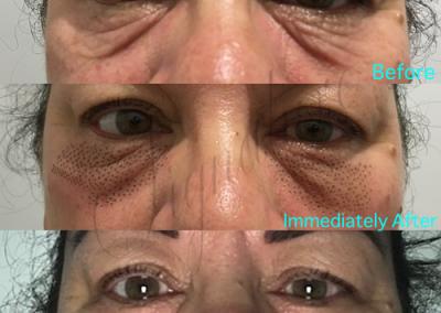 nonsurgical-eye-lift-01