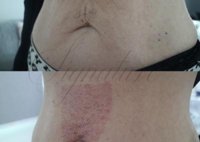 cosmetic tummy tightening