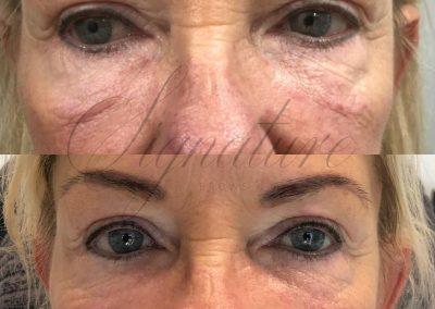 non surgical eye lift