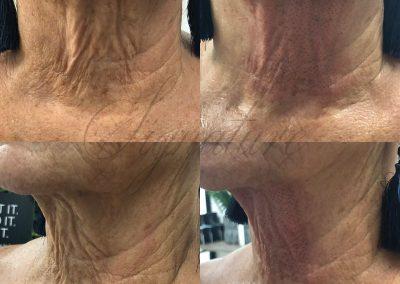 turkey neck treatment