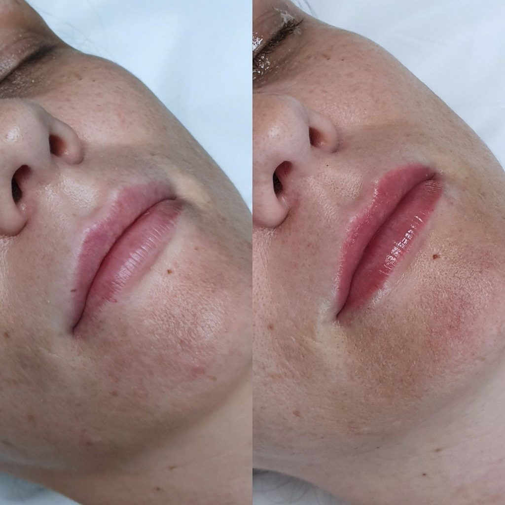 cosmeticLipTattooing ftimg3 1024x1024 - Cosmetic Tattoo Removal