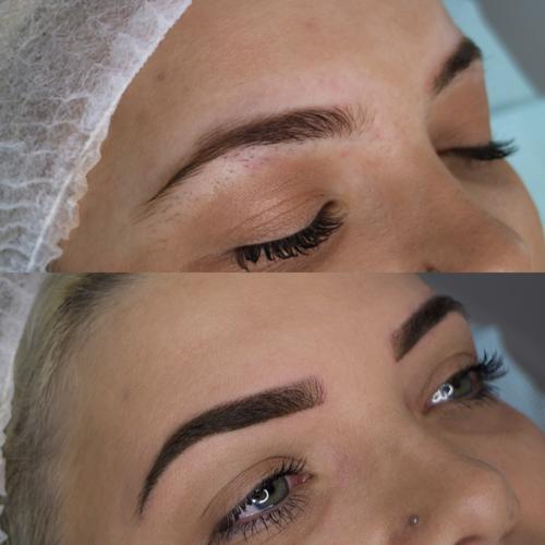 samara0 - Cosmetic Tattoo Removal