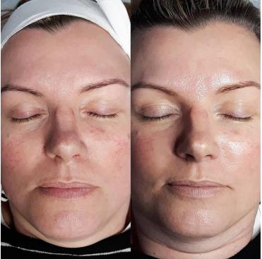microneedling skin treatment sunshine coast - BB Glow Micro Needle Therapy Sunshine Coast